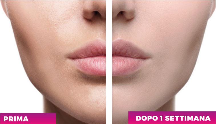 BIOAKÉ, trattamento mirato para pelle grassa o a tendenza ancenica. Addio ai brufoli e la pelle grassa con la gamma BIOAKÈ.
